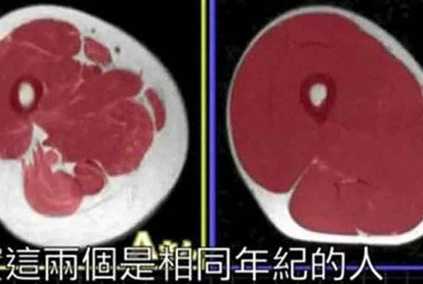這是兩位體重、腿圍、年齡均相同的男性大腿剖面圖,左邊是少肌型肥胖者,右邊屬於正常者。